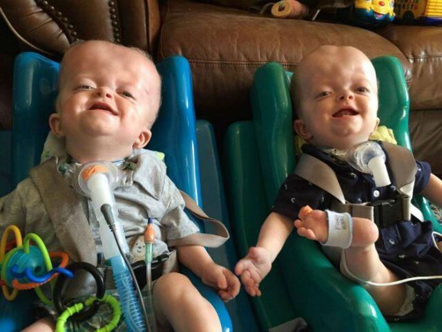 i-gemelli-affetti-da-una-rara-sindrome 3