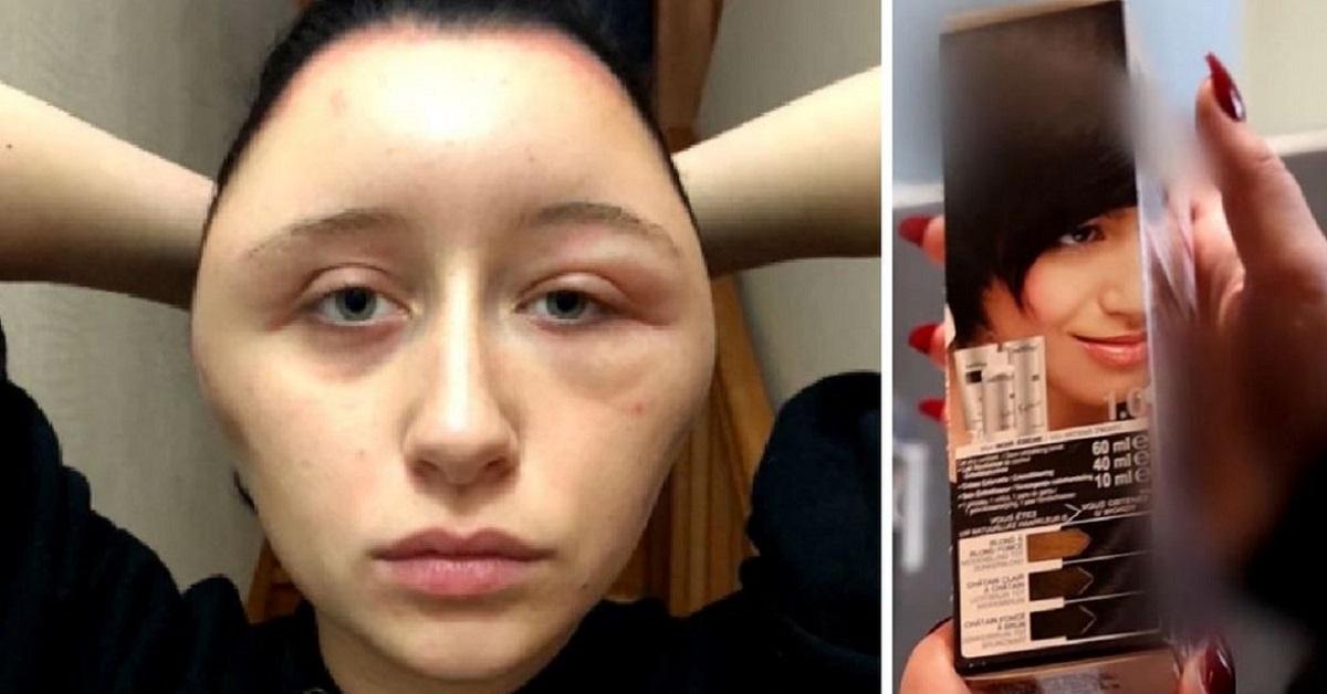 Allergia alle tinte per capelli