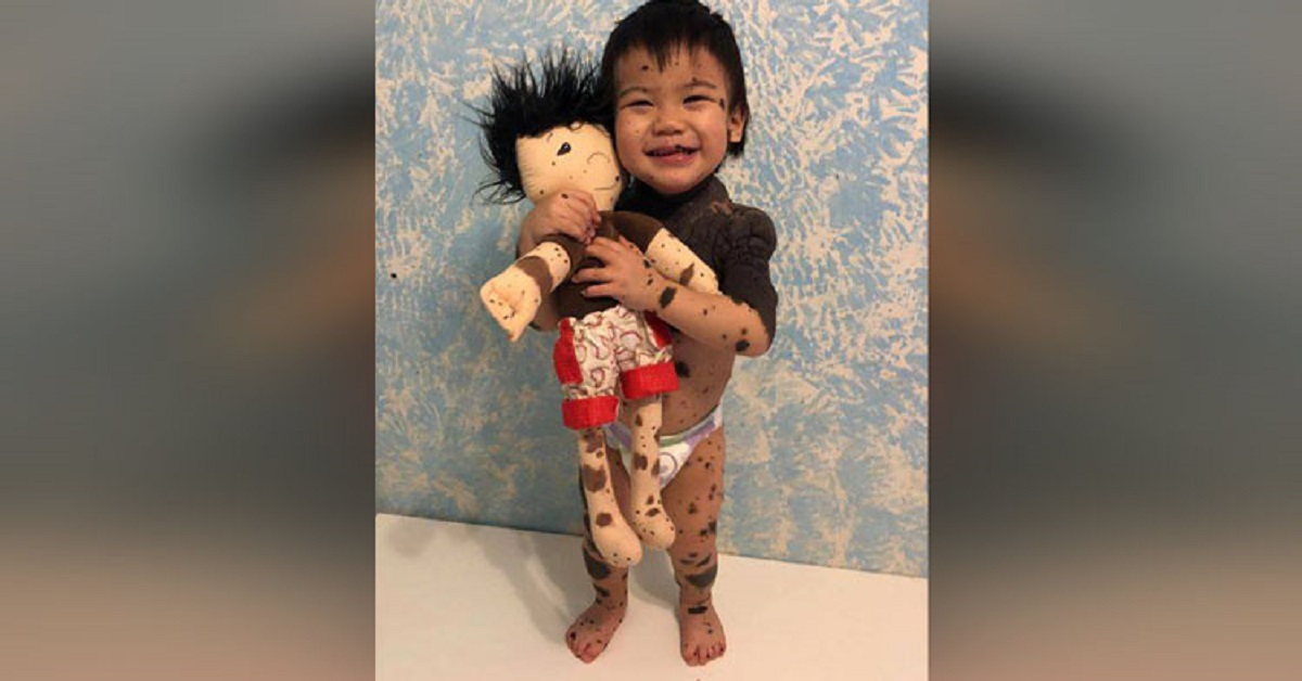 bambole-per-i-bambini-speciali