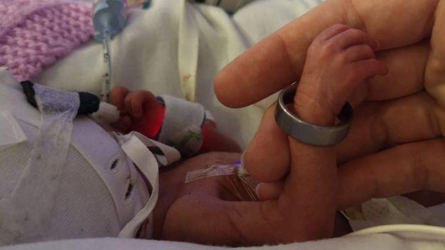 dopo-tredici-aborti-Laura-riesce-ad-avere-una-figlia 2