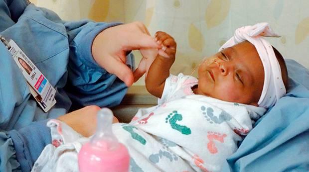 la-storia-di-Saybie-la-neonata-più-piccola-al-mondo 1