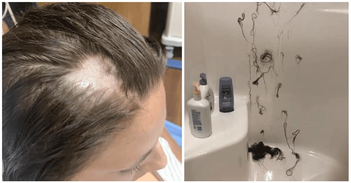 Donna perde capelli dopo aver usato un balsamo mischiato ...