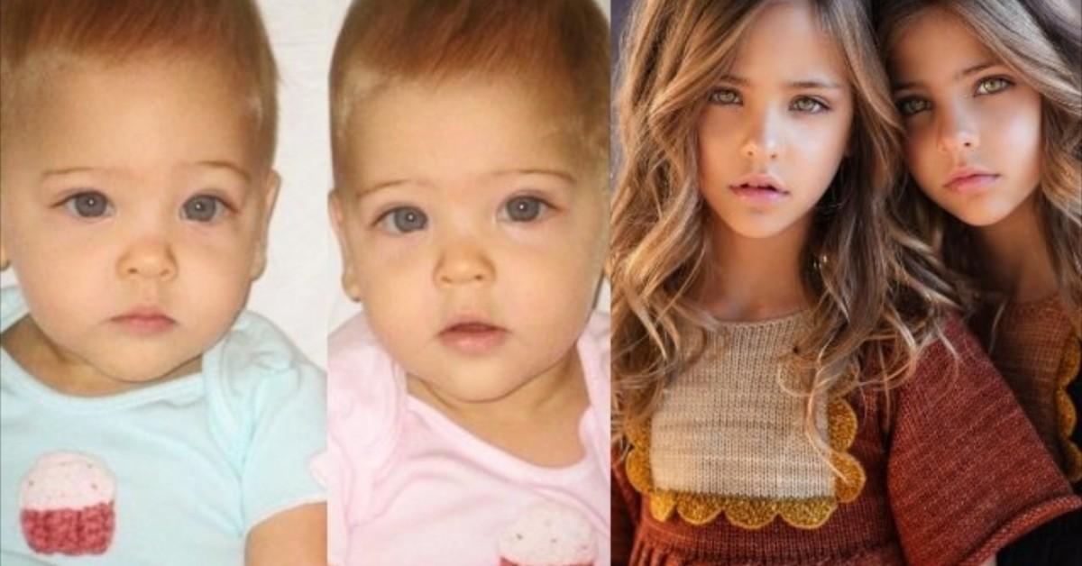 Le gemelle più belle del mondo chiedono ai loro follower di aiutarle a salvare il padre