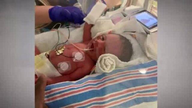 L'infermiera si fa una foto con il bambino prematuro |  dopo 30 accade l'improbabile