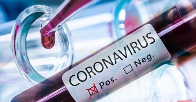 Coronavirus-6-medici-del-Policlinico-Umberto-I-positivi-al-test-in-isolamento-nelle-loro-abitazioni