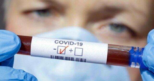 Coronavirus-Renato-Coen-positivo-al-test-sede-evacuata