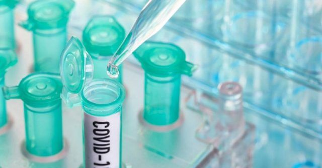 Coronavirus-deceduta-ragazza-di-27-anni-a-Pesaro-aveva-gia-altre-patologie