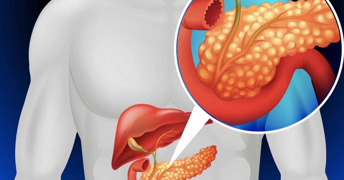 Infuso di foglie di loquat, pulisce i reni, il pancreas e regola la pressione sanguigna