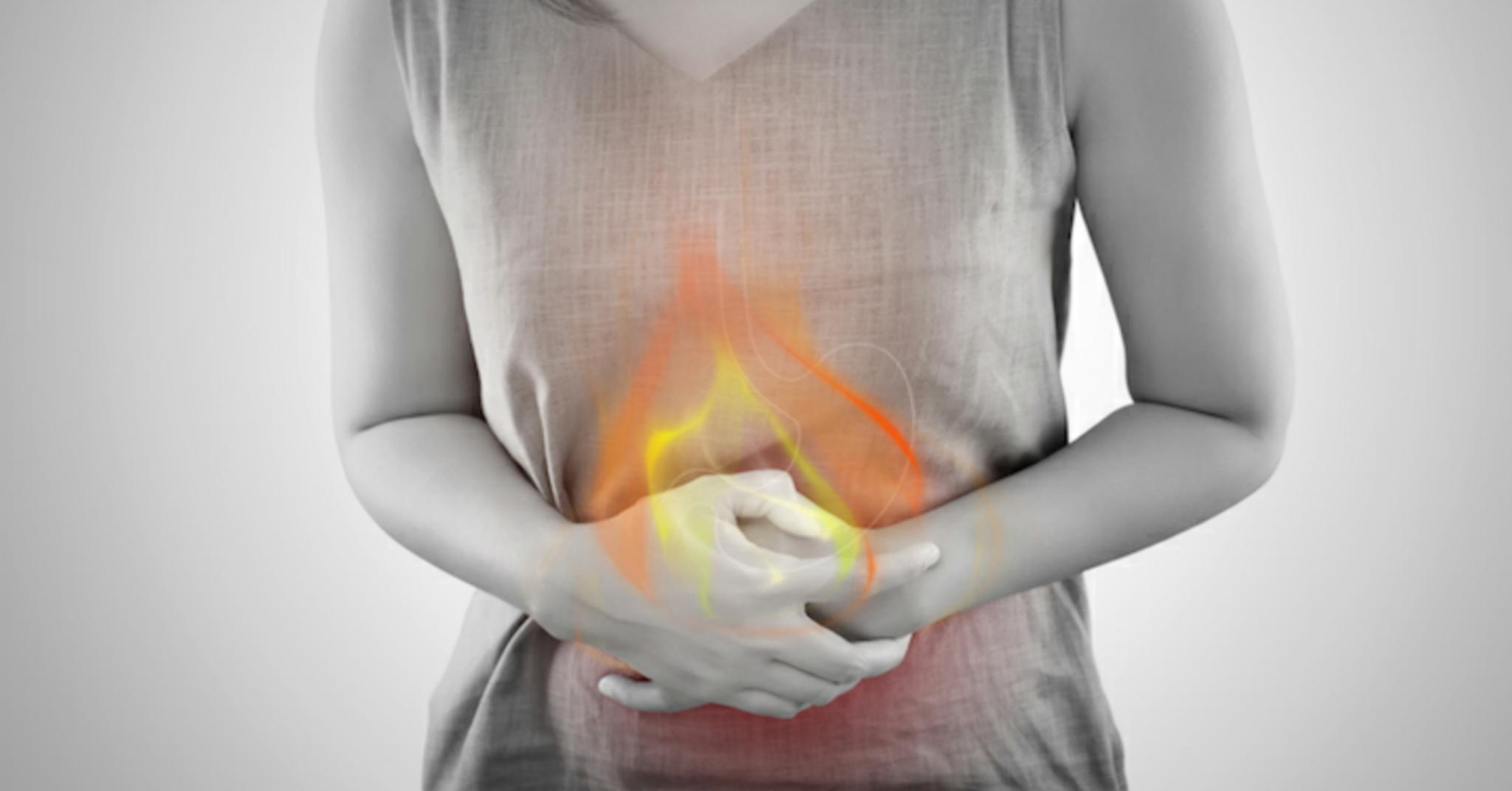 Rimedi naturali per ridurre il bruciore di stomaco