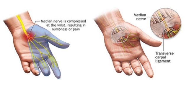 Anatomia tunnel carpale