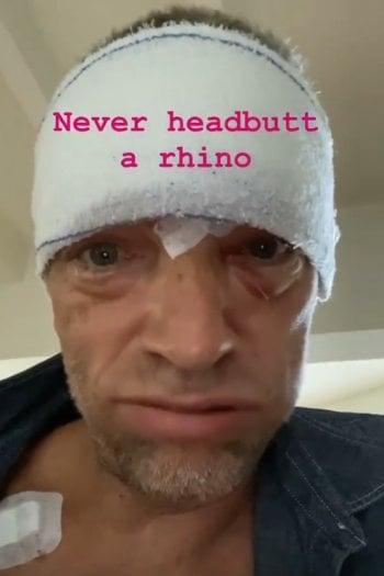 Le ferite di Vincent Cassel