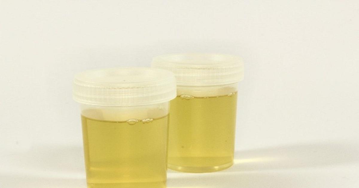 Colore dell'urina