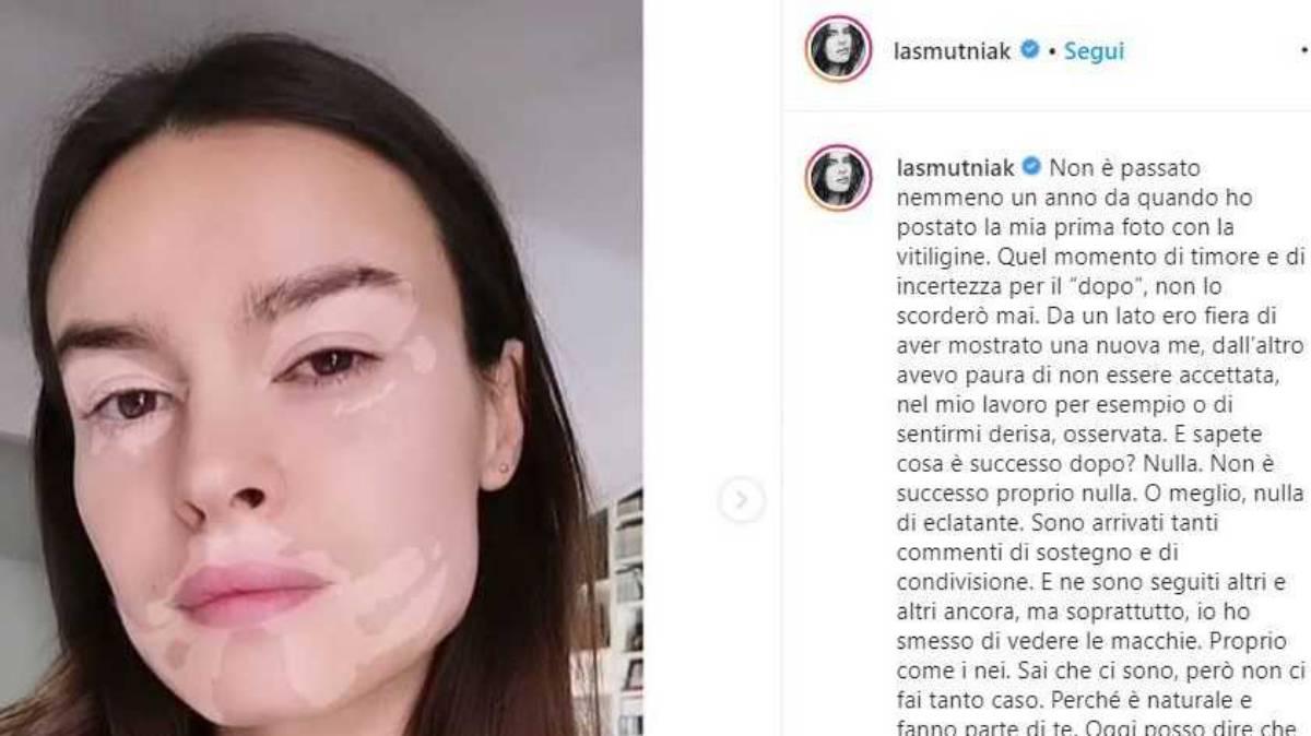 il filtro vitiligine di Kasia Smutniak