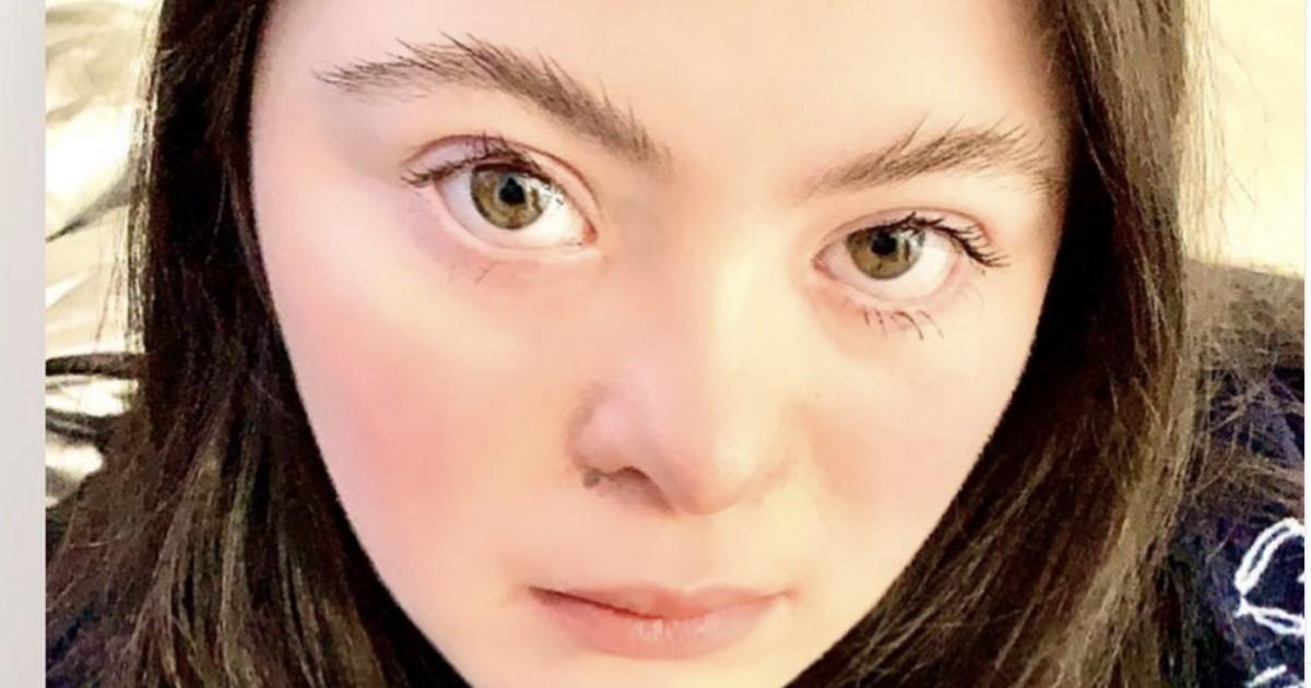 La giovane modella Ellie Goldstein