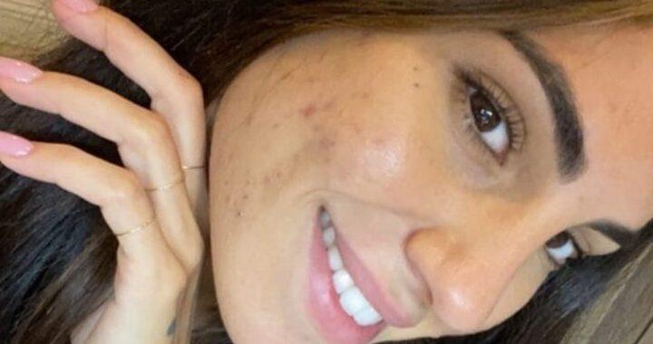 Giulia De Lellis acne