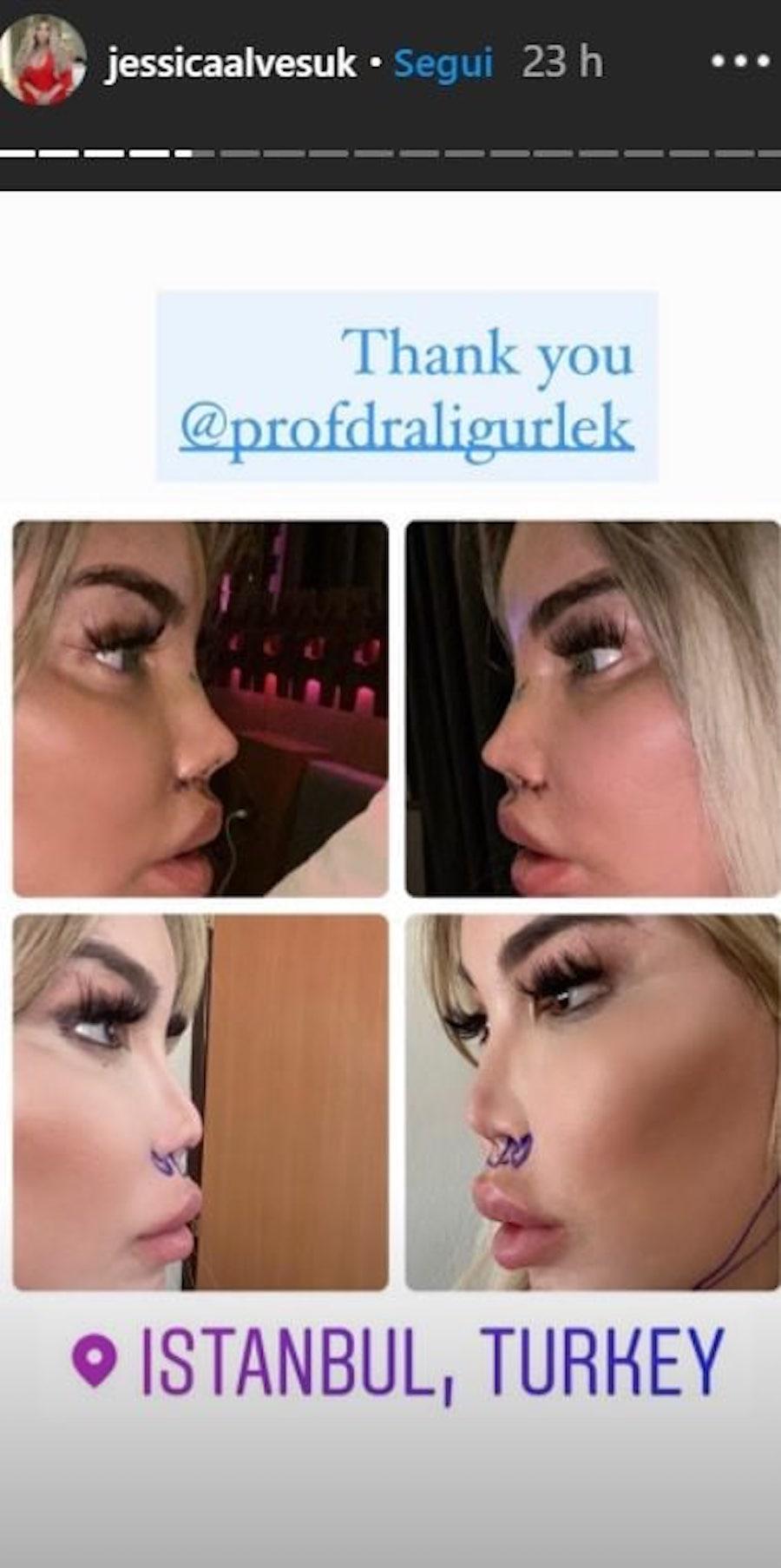 Naso rifatto Jessica Alves