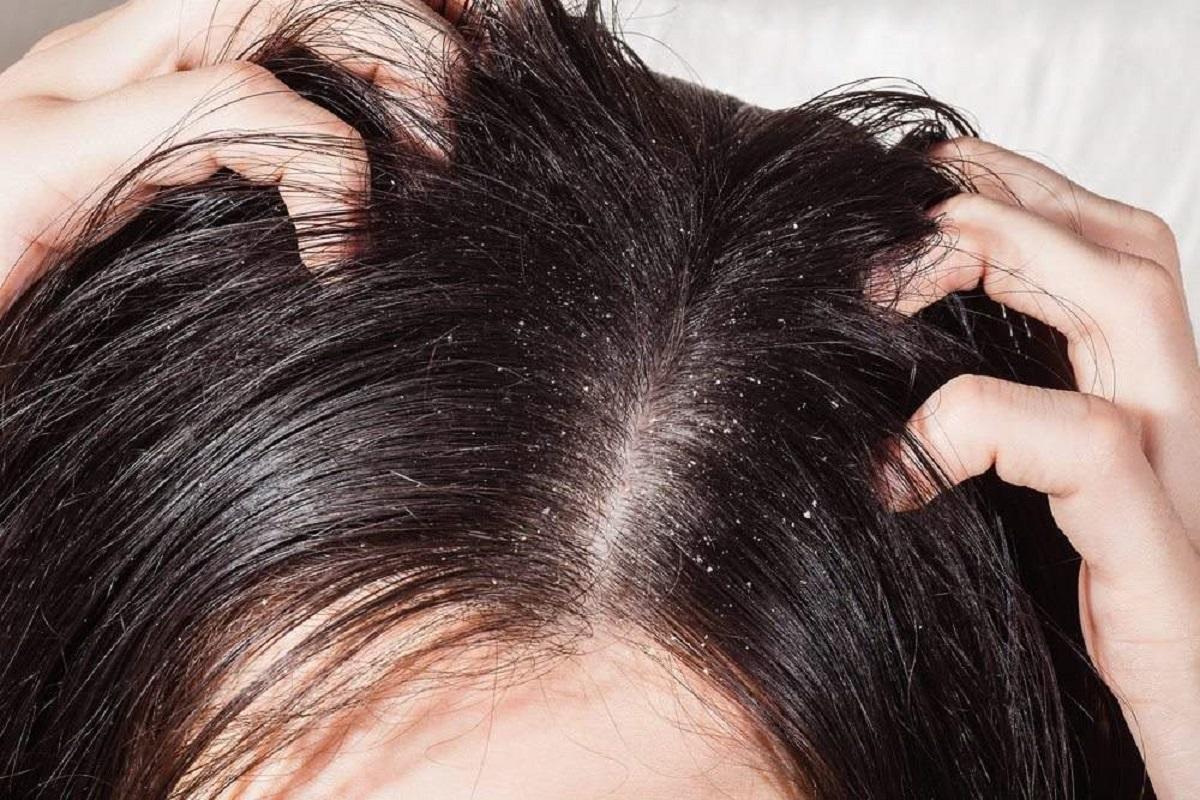 Se non lavi i capelli per una intera settimana ecco cosa succederà