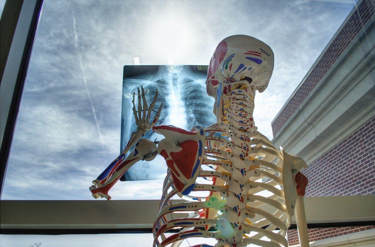 Radiografia allo scheletro