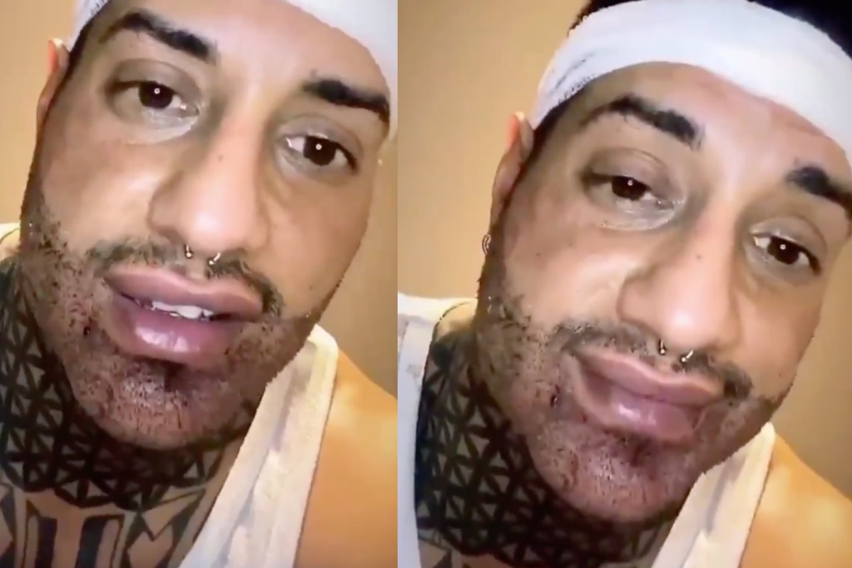 Chiofalo dopo il trapianto di barba