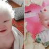 due sorelle albine