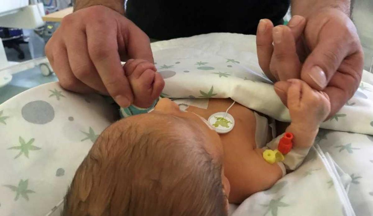 Nata con una malformazione polmonare ed operata, la piccola Chloe si sta riprendendo