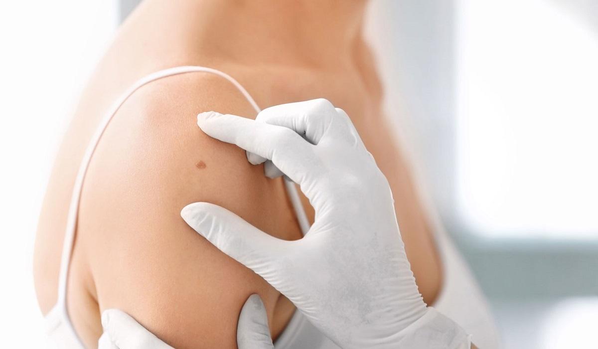 Estetista melanoma prevenzione