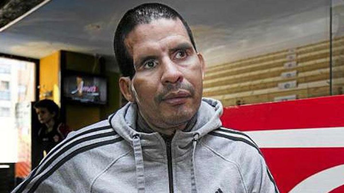 Fernando Caceres di nuovo in coma