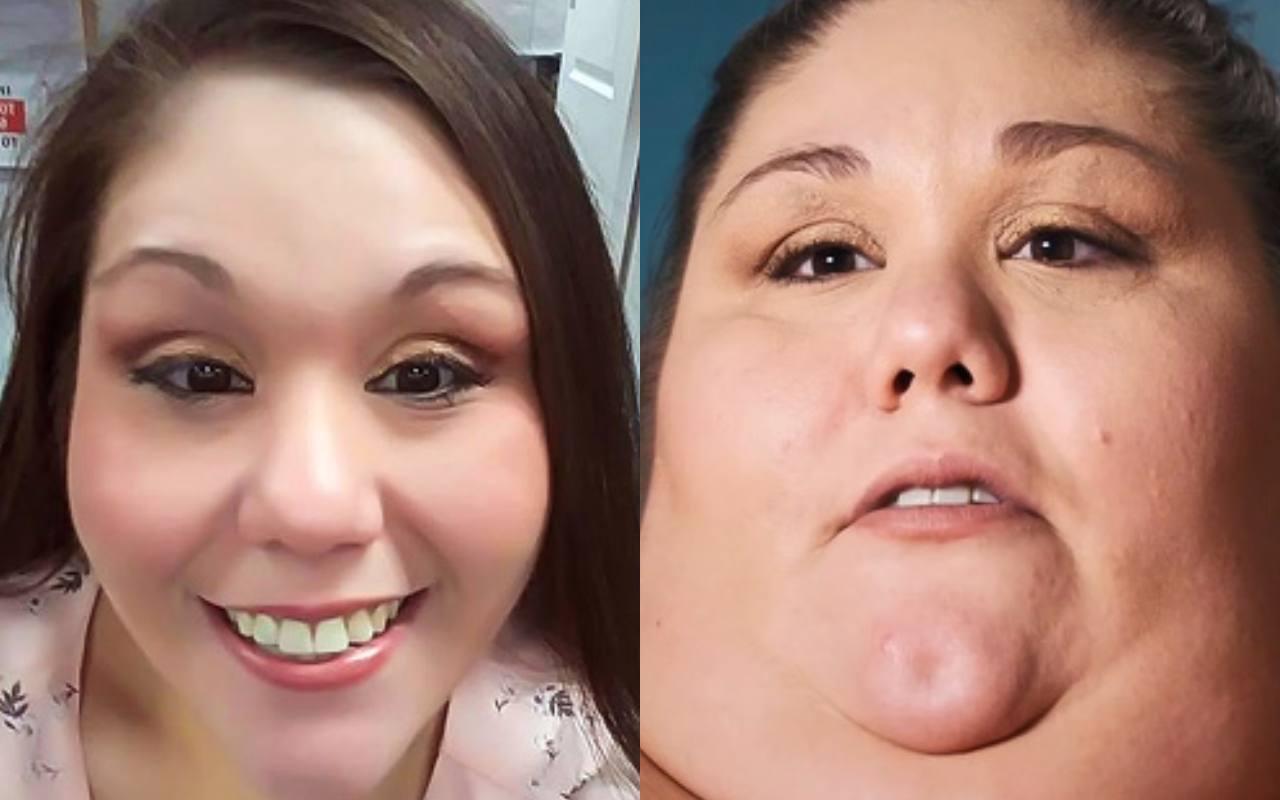 La paziente ieri e oggi