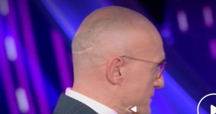 Alfonso Signorini, ecco perché ha una cicatrice sulla testa