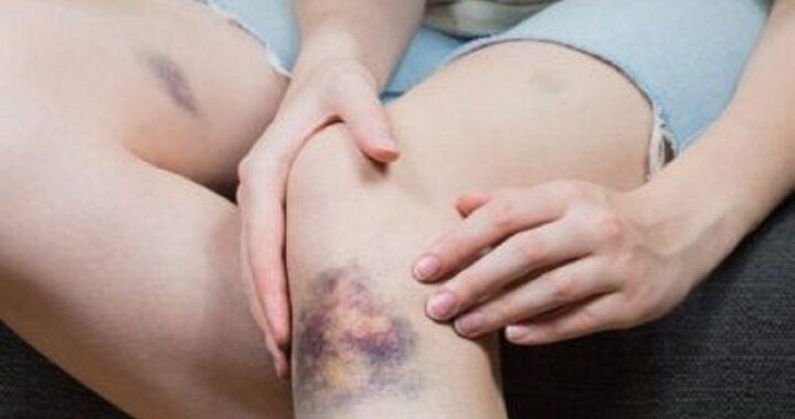 Se ha notato dei lividi strani sul tuo corpo queste potrebbero essere le cause